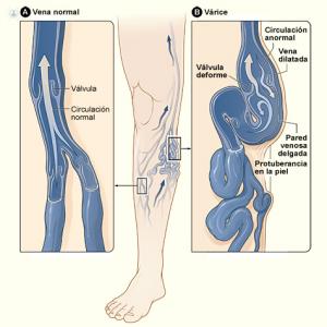 imagen de vena varicosa y vena normal